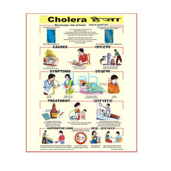 Cholera Chart India, Cholera Chart Manufacturer, Cholera ...