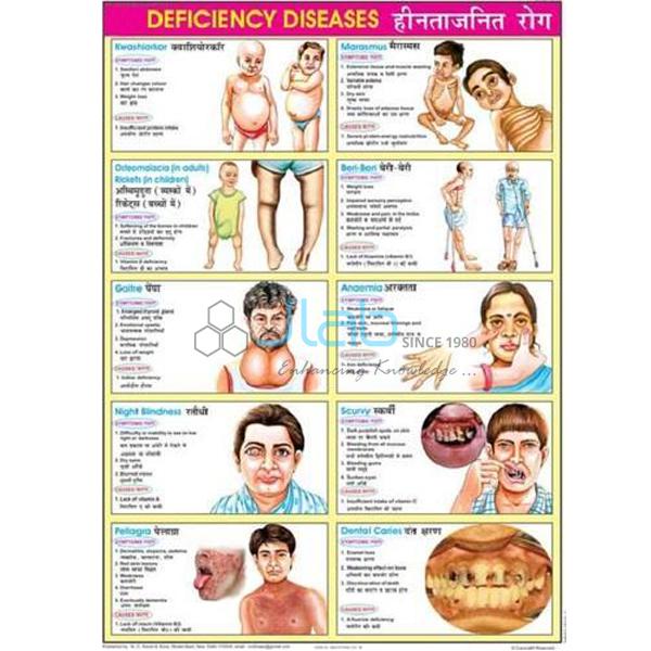 Deficiency Diseases India, Deficiency Diseases Manufacturer, Deficiency Diseases Suppliers and ...