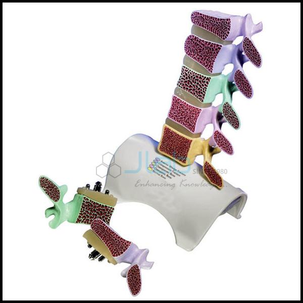 Ankylosing Spondylitis Spine Model