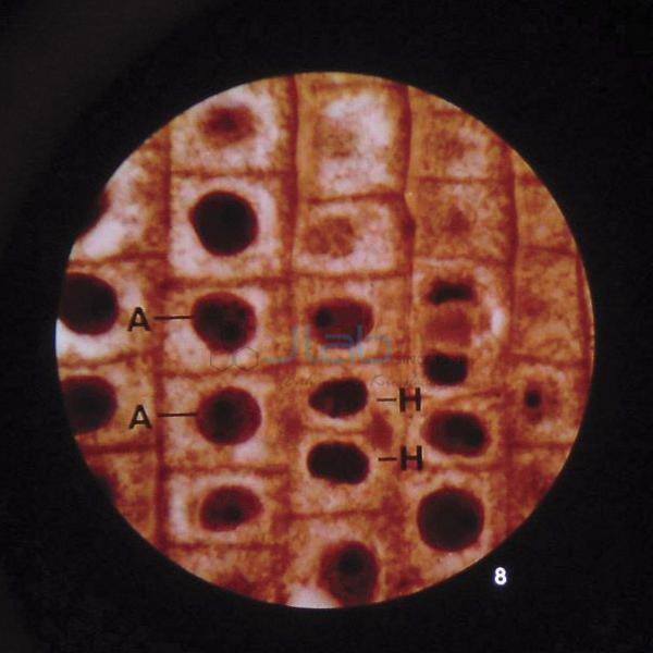 Microslide Plant Mitosis