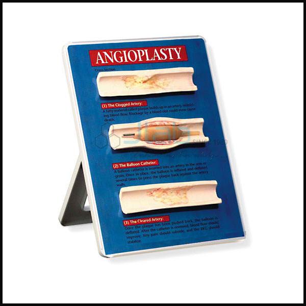 Balloon Angioplasty Models