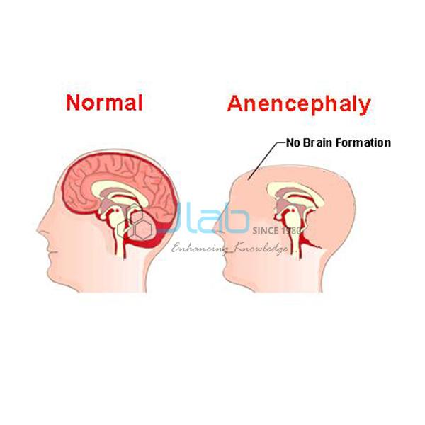 Anencephaly Model