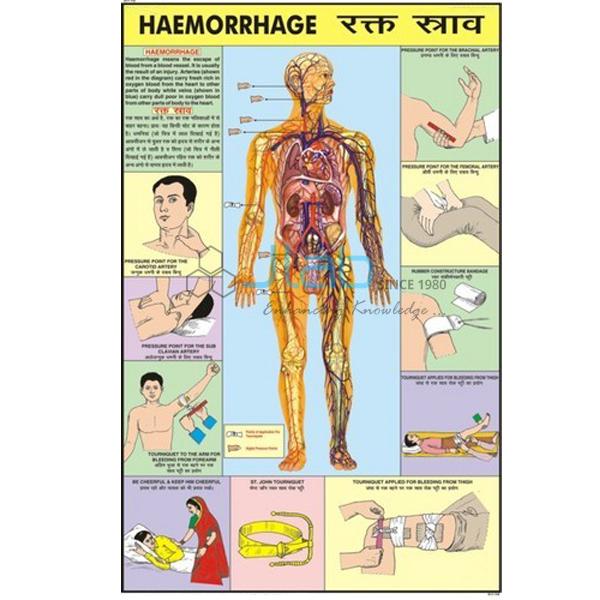 Hemorrhage Chart