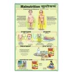 Malnutrition Chart